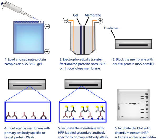 Overview of the western blotting procedure.