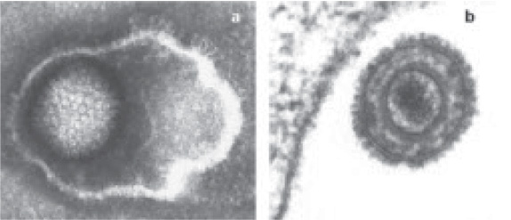 Electron microscope images of HCMV particles