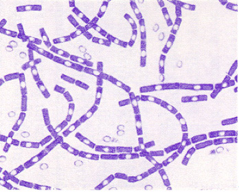 Gram stain of B. anthracis
