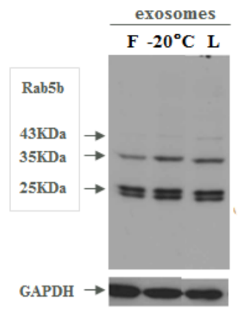 Western Blot comparison of exosomal markers on fresh (F), frozen (-20</strong><strong>°C) and lyophilized exosomes