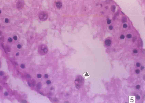 Testicular section from U. urealyticum -infected rat stained by HE