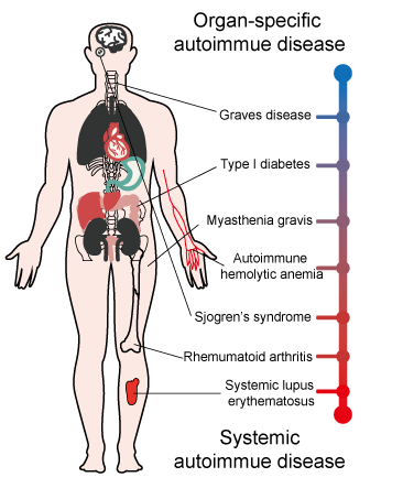 Organ specific and systemic autoimmune diseasee
