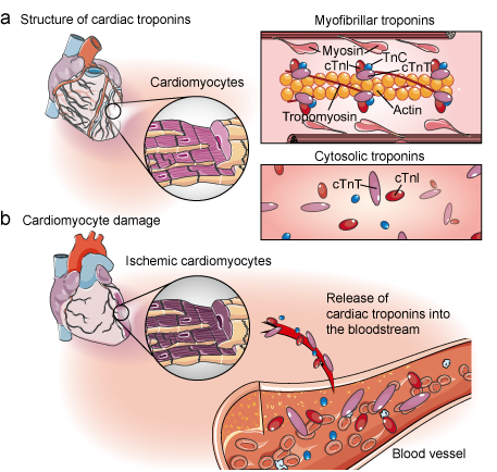 Cardiac troponins and cardiomyocyte damage